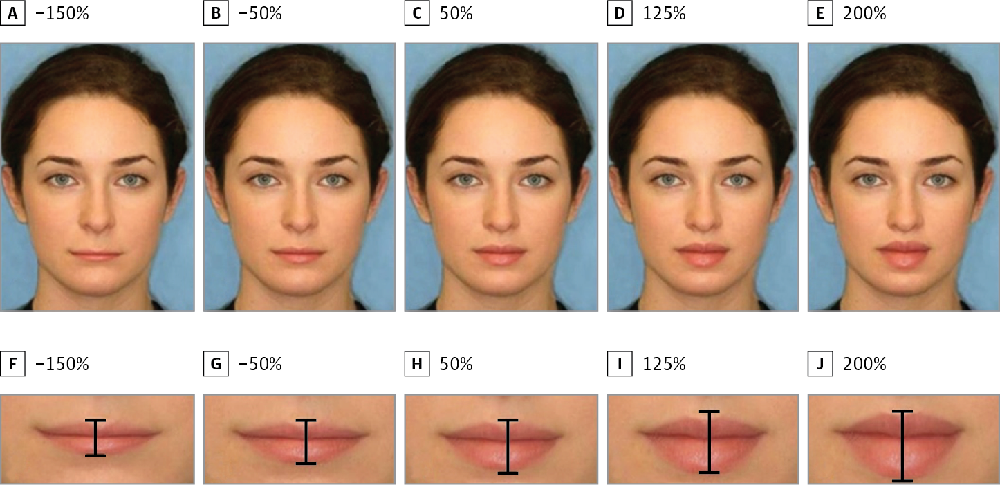 Lip ratios - How Often Do You Have To Get Your Lips Refilled