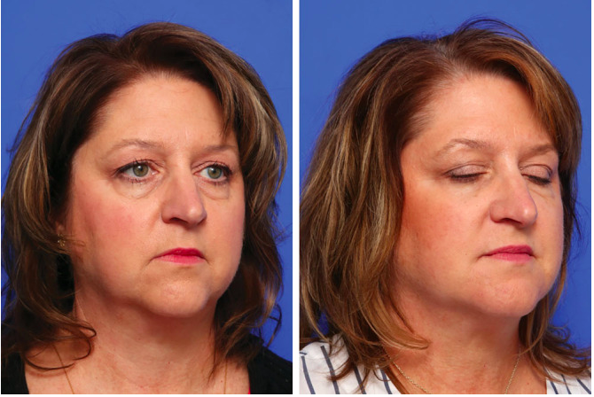 Kybella for Double Chin & Jowls | Elite Medical & Aesthetics