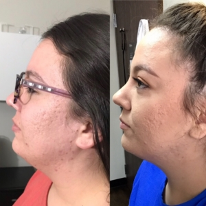 Before/After of Kybella