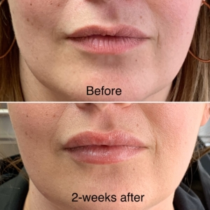 EMA client Before and after Revanesse Versa lip filler