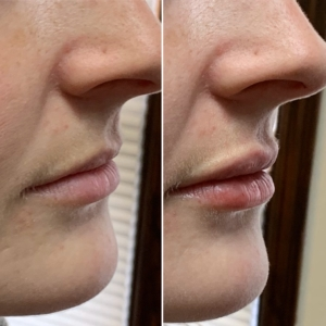 Top view of before and after of EMA client's lips after Revanesse Versa lip filler
