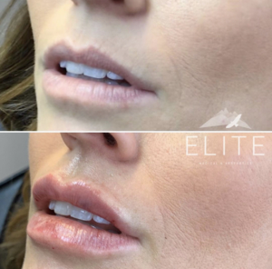 View of Elite Medical and Aesthetics's patient before and after Revanesse Versa filler