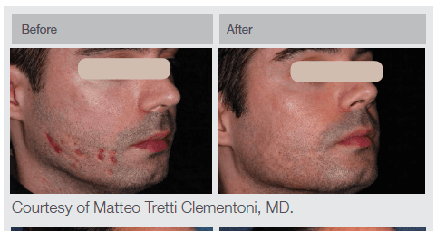 EMA client before and after of ResurFX on face and cheeks