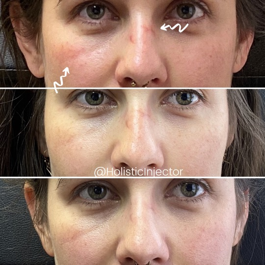 Womans face before and after resurfx on nose