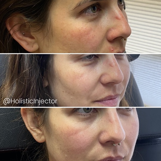 side profile before and after resurfx on cheeks