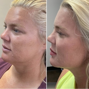 EMA client before and after of Radiesse