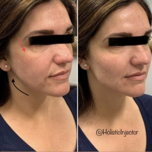 Before and after of EMA clients with Radiesse in cheeks and chin
