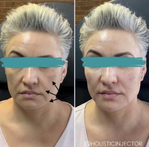 EMA client before and after Radiesse in cheeks