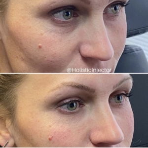 EMA client before and after Under Eye Filler