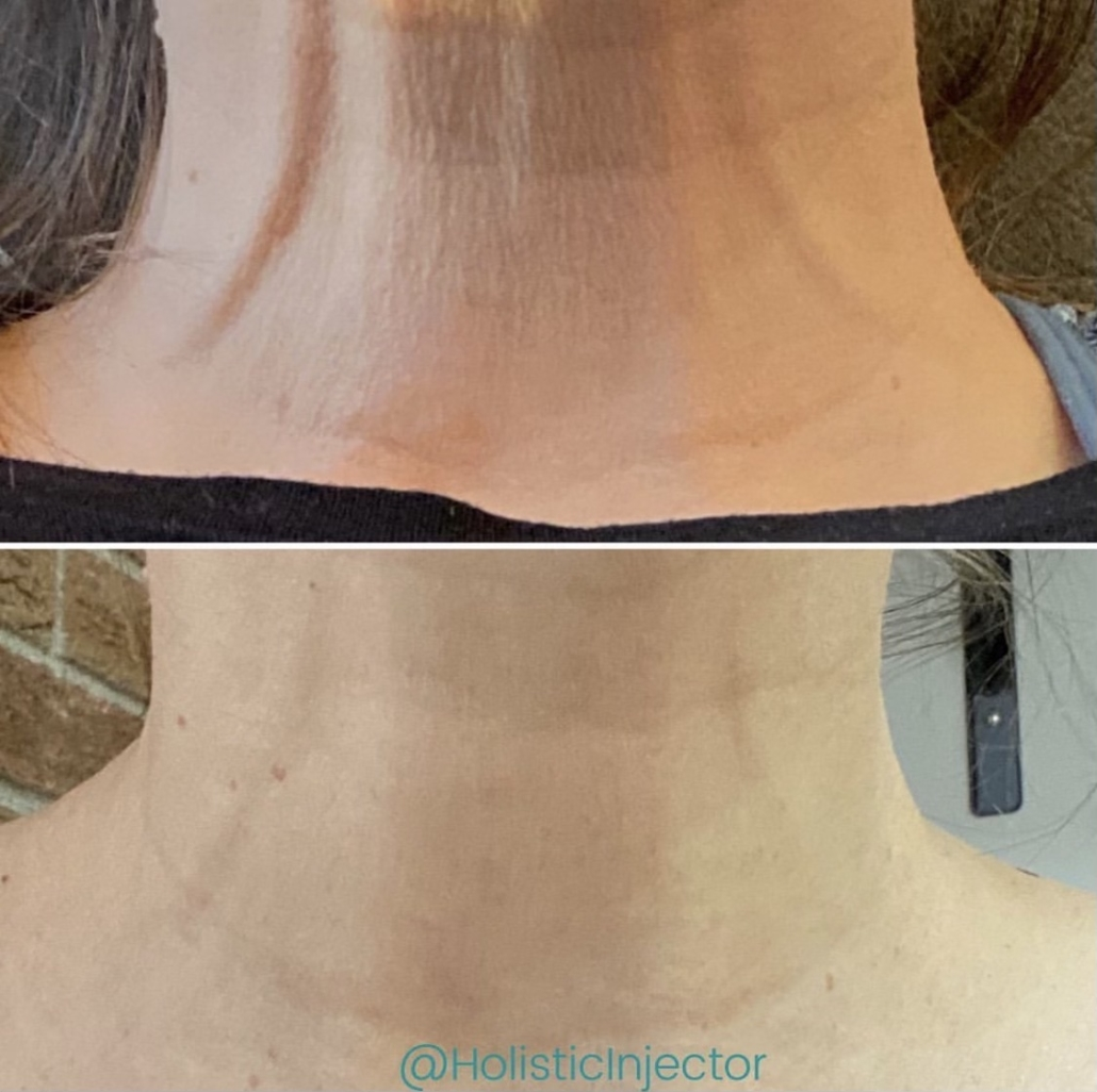 Laser Skin Tightening Before and After on Neck