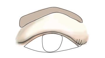 What Hooded Eyelids Look Like